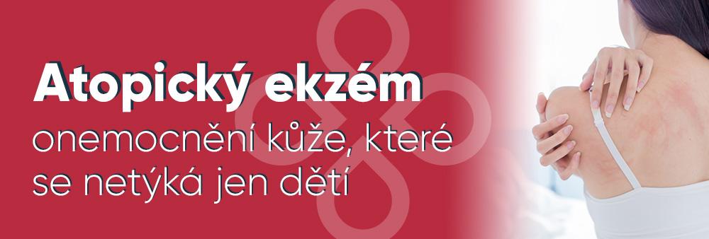 banner_ekzemy