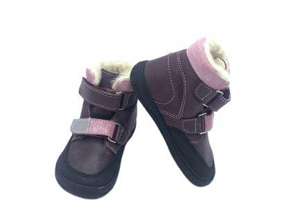 Jonap B5 - Sivé s bodkami - Zimné topánky