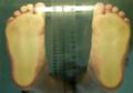 Jak poznat ploché nohy