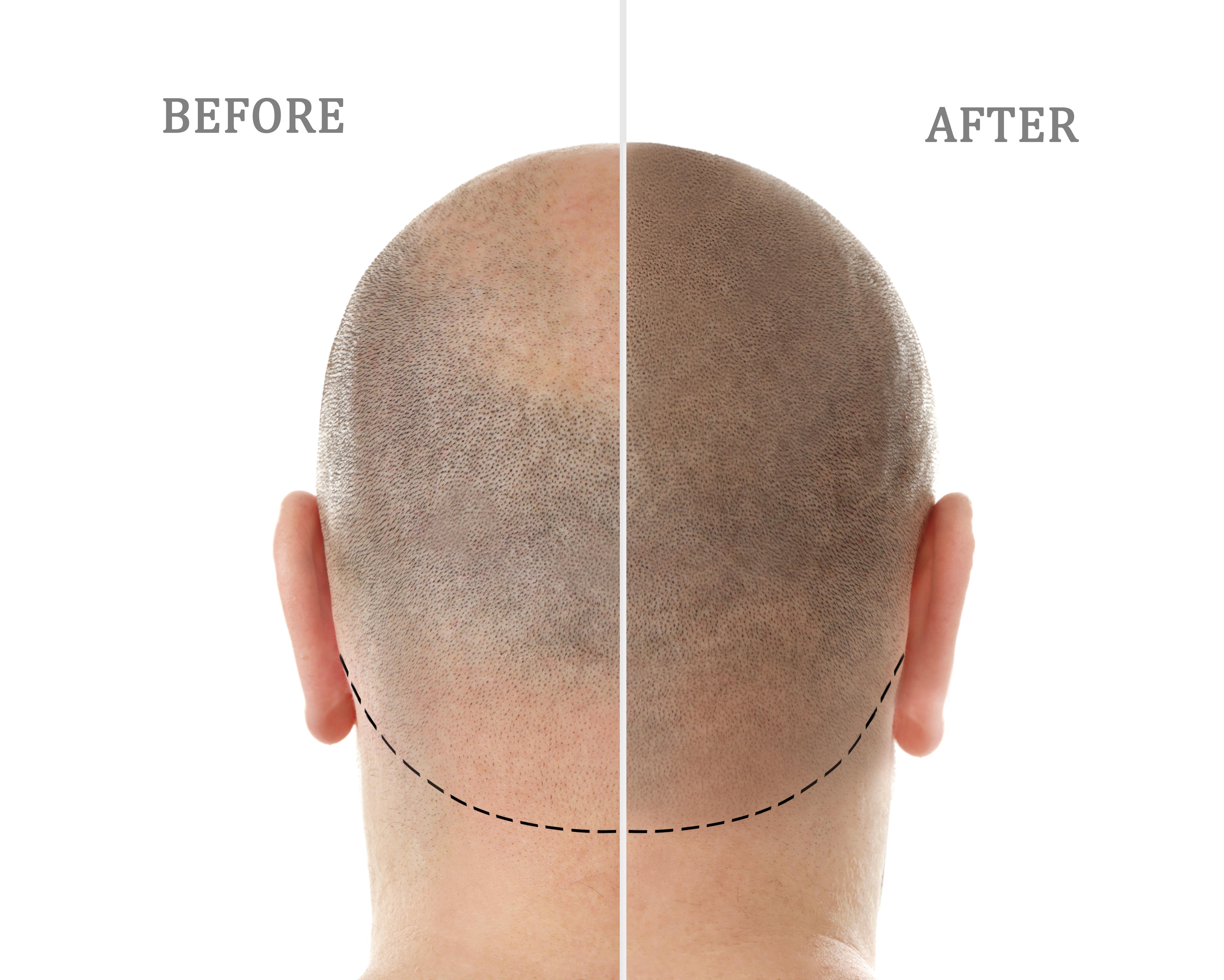 Liečba vypadávania vlasov - Vypadavajú mi vlasy, čo stým?