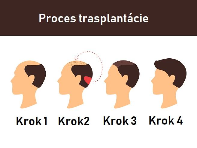 Transplantacia