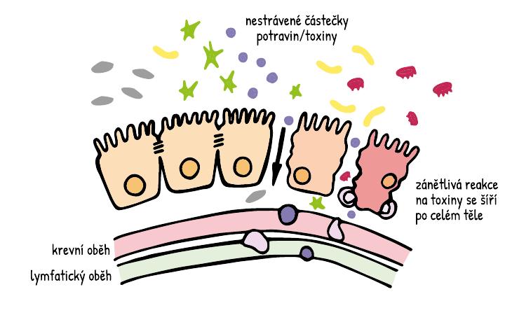 Leaky gut syndrom (propustnost střev) a zánětlivé onemocnění střev – podpora mikrobiomu doplňky stravy
