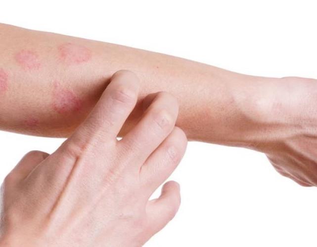 CBD a atopický ekzém, neboli dermatitida