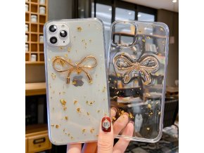 2 Bling Glitter Case For iPhone 11 Pro Max X XR XS Max 3D Cute Cartoon Shiny (1)