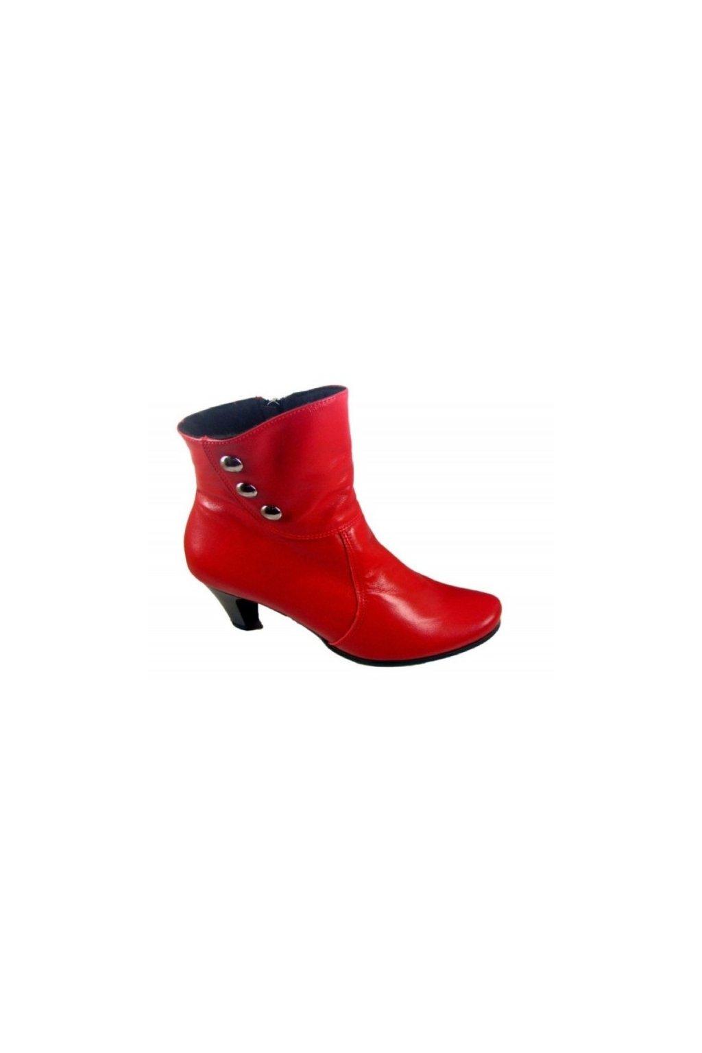 Podměrná dámská obuv Robert 1140