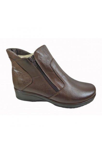 Nadměrná dámská obuv Alex AM 181/p