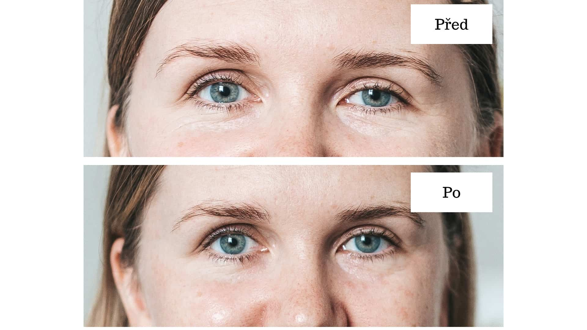 nano-eye-lift-pred-po