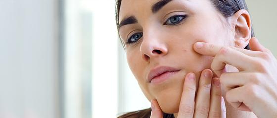 Akné a ich účinné odstránenie pomocou náplasti