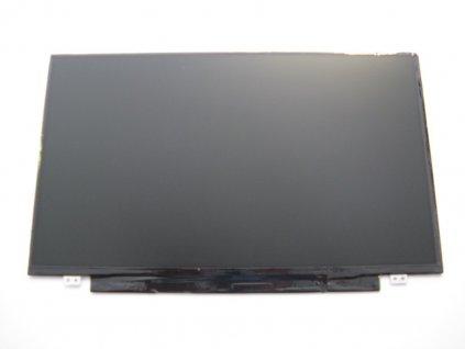 LCD 336 1