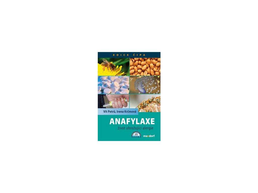 Anafylaxe