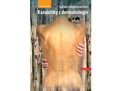 Kazuistiky z dermatologie