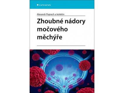 Zhoubné nádory močového měchýře
