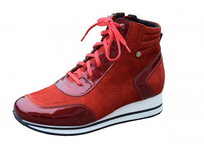 Nik Giatoma Niccoli kotníková obuv 08-0396-003