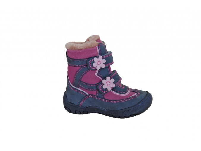 Protetika dívčí obuv Diana