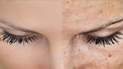 Zmažte pigmentové škvrny, spomienky vašej pokožky na drobné prehrešky