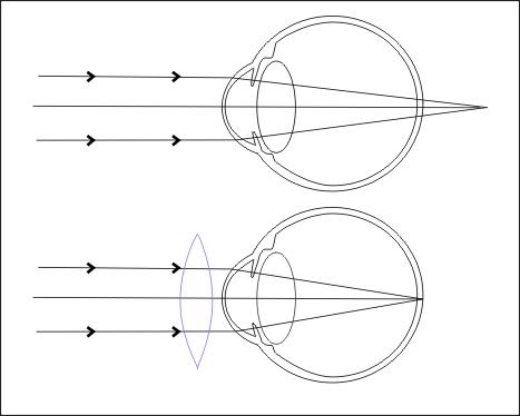 Hypermetropie - dalekozrakost