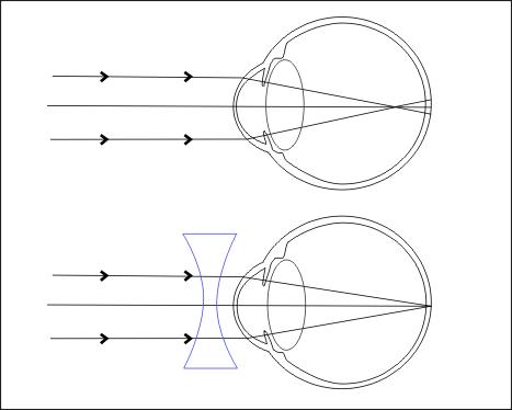 Myopie - krátkozrakost
