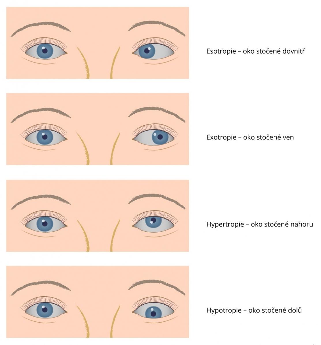 Šilhání - strabismus