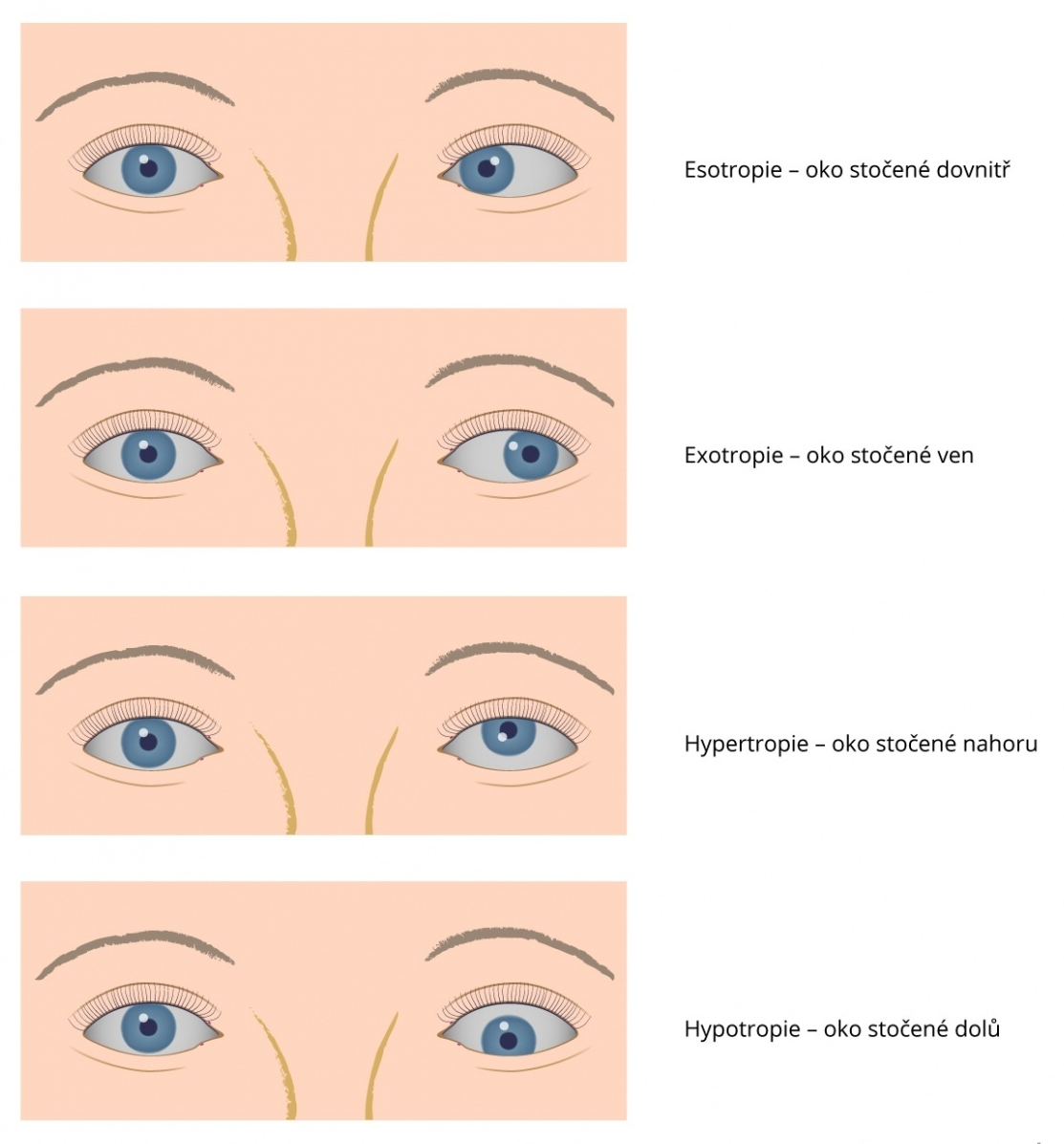 strabismus-silhani