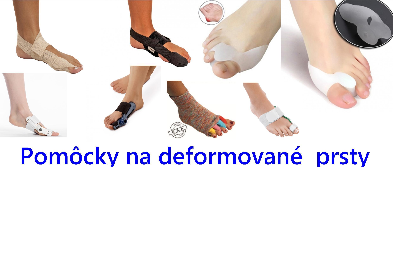 rôzne pomôcky na deformované prsty