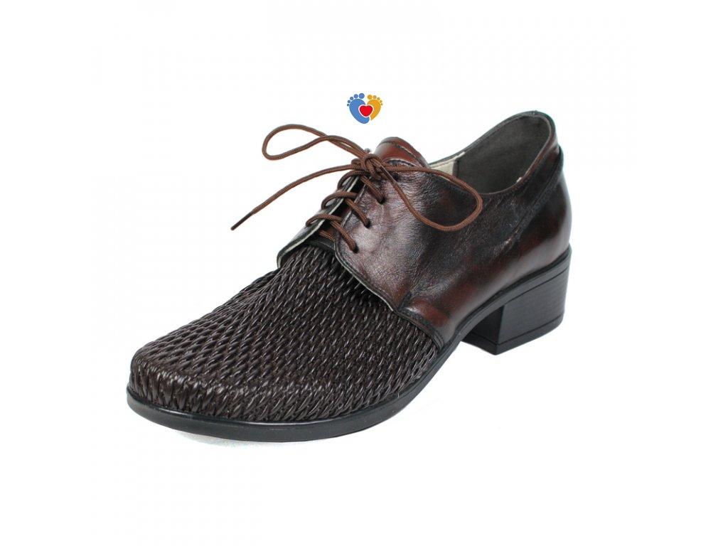 Dámska obuv na hallux GIFT 7137