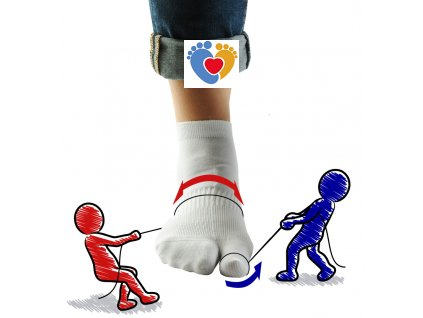 Hallux valgus ortopedické ponožky ARTHROLUX