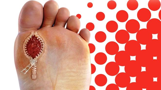 Jak úspěšně léčit diabetickou nohu? Spolehněte se na aktivní kyslík