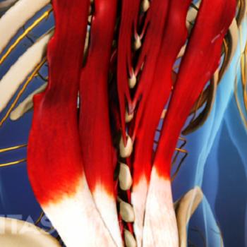 QL: nejčastější příčina bolestí v zádech