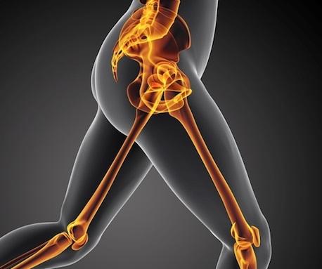 Využití elektroterapie při bolestech v kyčlích