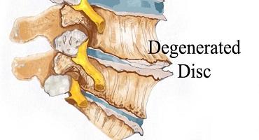 Chondróza meziobratlových plotének (DDD)
