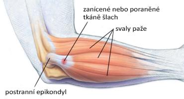 Úponové bolesti lokte