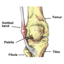 Iliotibiální syndrom (ITBS)