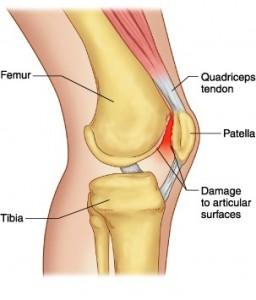 Běžecké koleno (Runner´s Knee)
