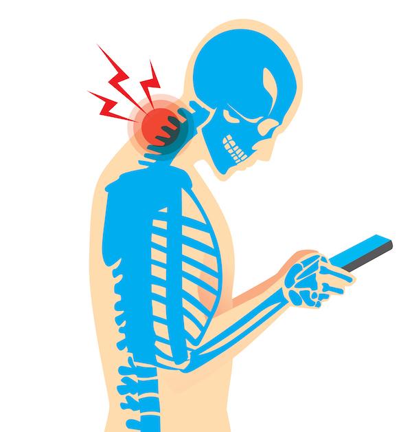 Syndrom SMSkového krku (TEXT NECK)