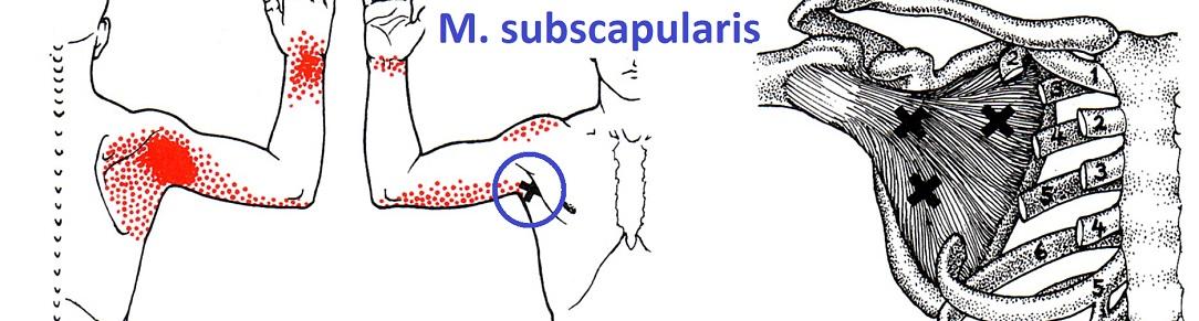 shoulder_TP_subscapularis_1084x291