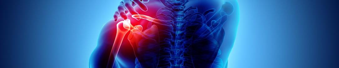 shoulder_pain_10823x217