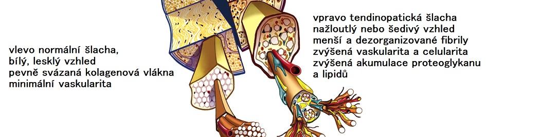 tendinopathy2CZ_1083x267