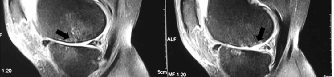KNEE-MRI1084x251