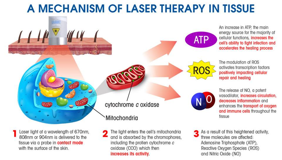 Laser_Therapy_2017