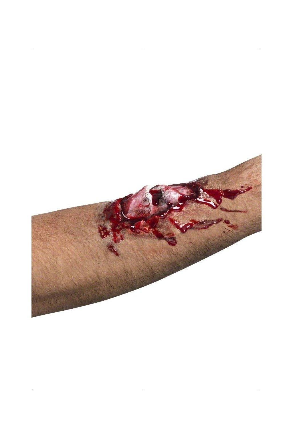 Zranění - Zlomená kost