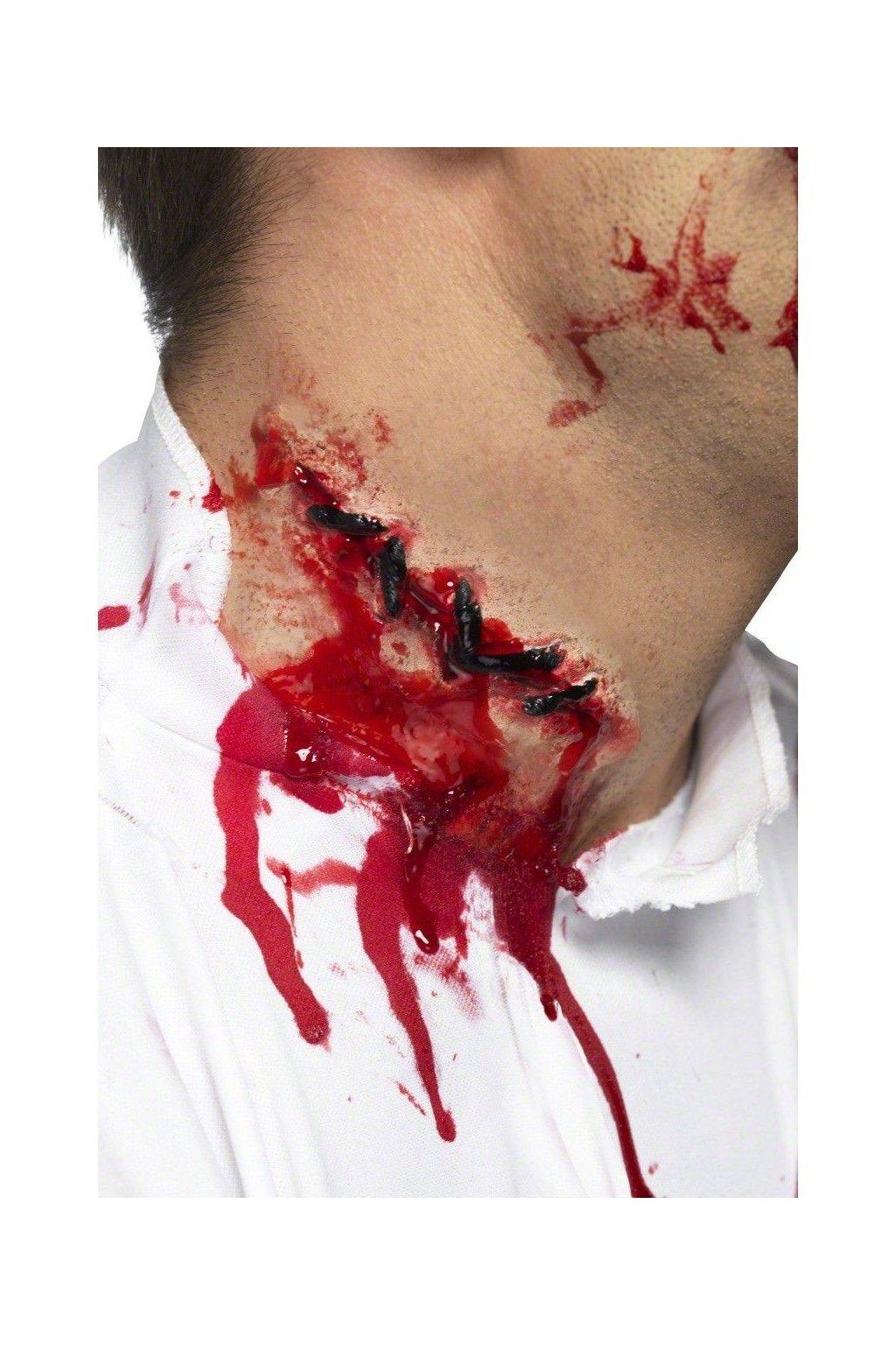 zranění - Jizva se stehy
