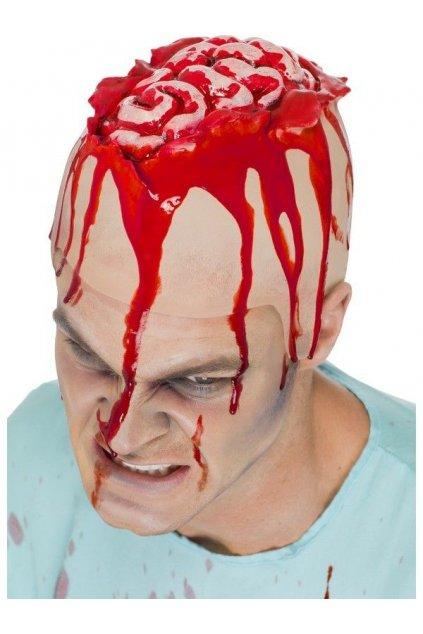 Otevřená hlava - zranění