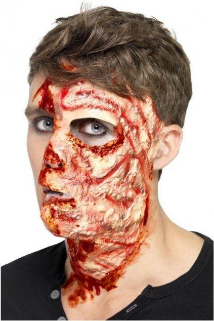 Zranění jako spálený obličej