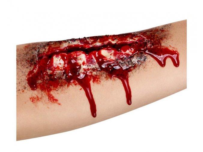 Zranění Řezná rána
