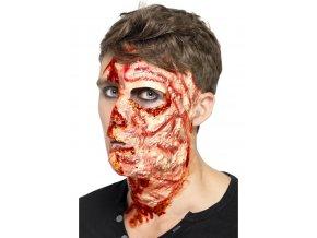 Umělé zranění Spálená kůže