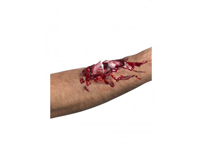 Umělé zranění Zlomená kost