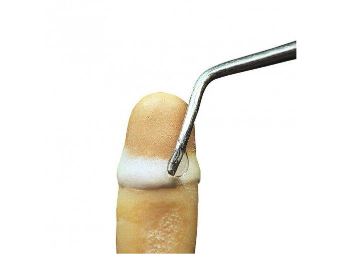 Keramický vosk pro modelaci krčkového okraje