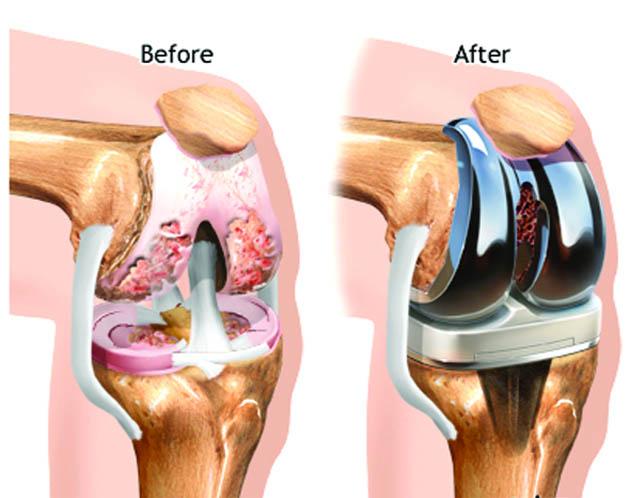 Vše o totální endoprotéze kolene (TEP)