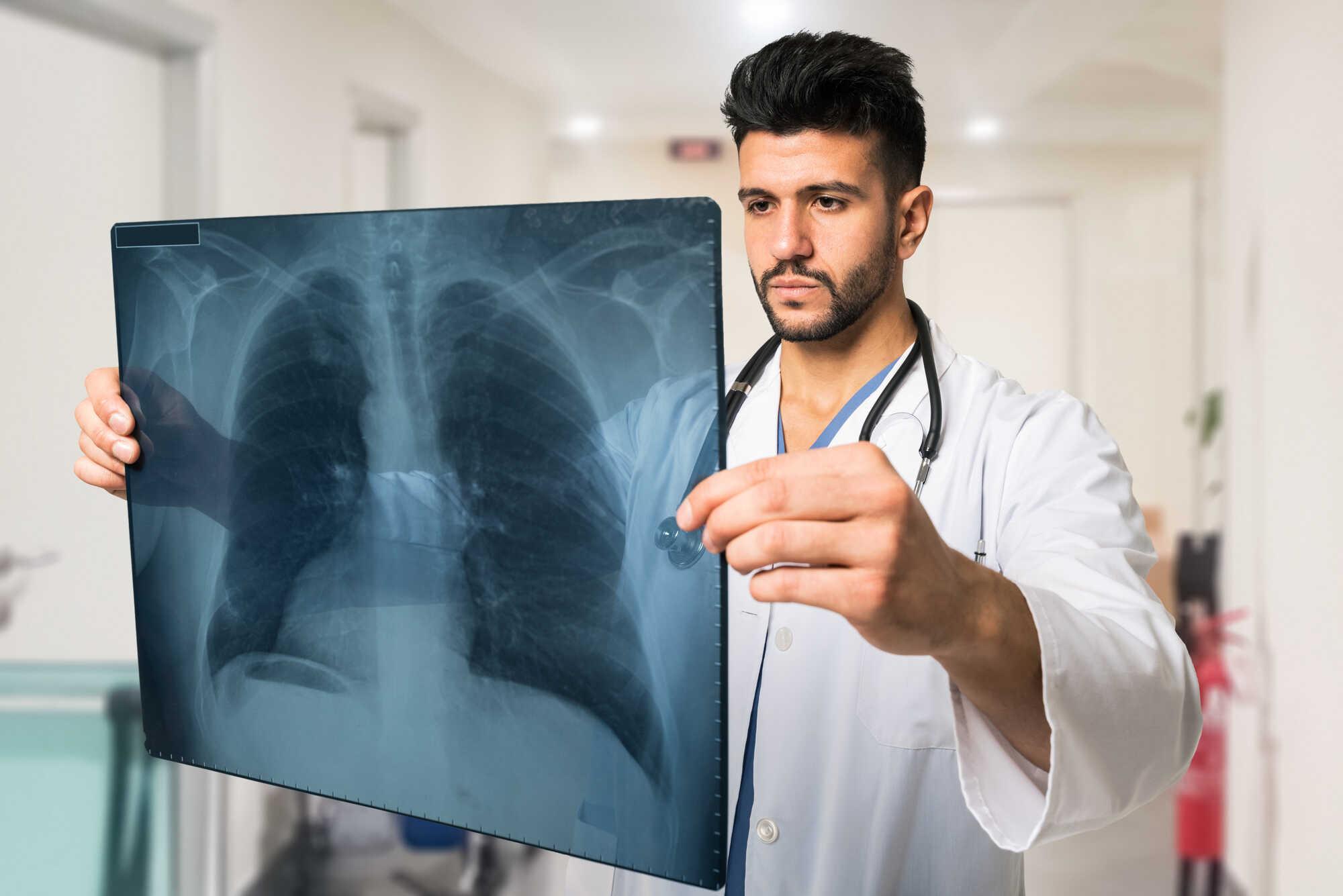 co je to plicní fibroza?
