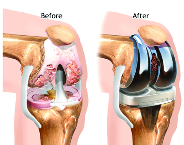 Všetko o totálnej endoprotéze kolena (TEP)
